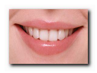 отбеливающие средства для зубов