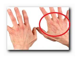 аллергический кожный дерматит