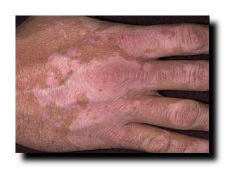проблемы и болезни кожи