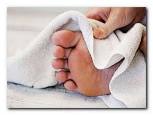 лечение микоза в домашних условиях