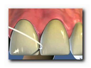 чистка имплантатов зубов