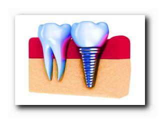 сделать имплантацию зубов
