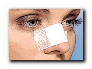 отек носа после ринопластики