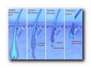 элос эпиляция процедура