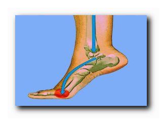 высокие каблуки вред