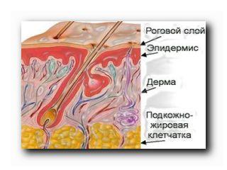 мацерация кожи проблемы